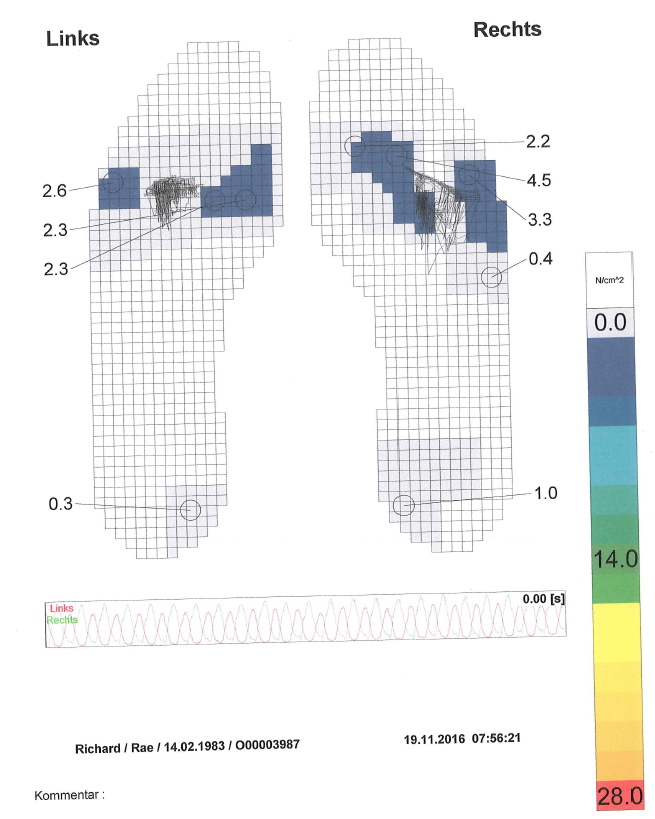foot pressure points whilst peddling